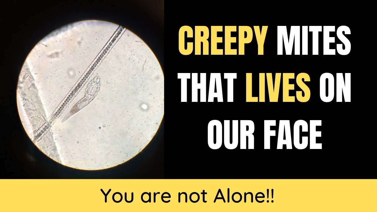 creepy mites that live on your face - demodex